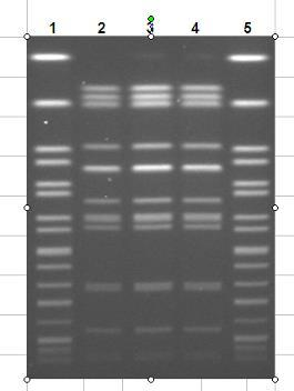 Gel ID: NM8070 Date Gel Run: 5/20/08 Outbreak Detection by PFGE Lane Age Gender Submitter Submitted Serotype Enzyme Pattern Match 2 58 Female Gallup Med