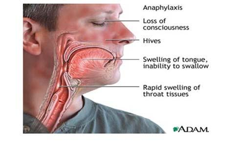 my tongue My lips feel tight There s a frog in my throat It feels like a bump is on the back of my tongue My tongue itches