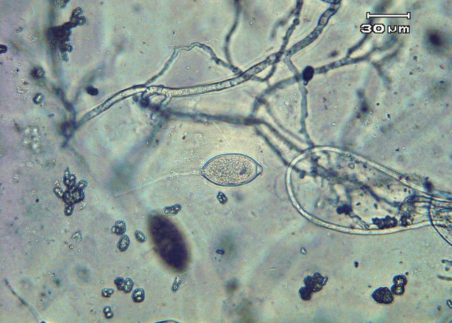 Zoospores are motile and swim to reach and invade host tissue. Plentiful surface moisture is required for this activity.